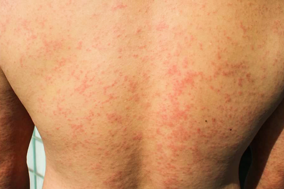 backside full of rashes from Chikungunya virus